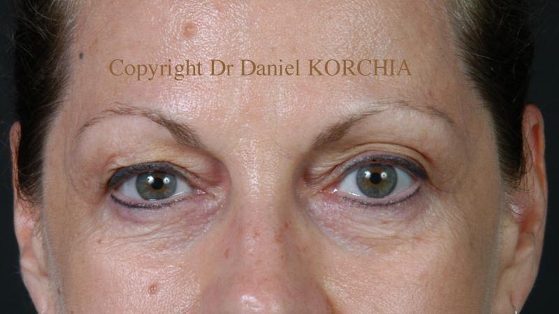 photos avant apr s chirurgie du visage et orl dr korchia. Black Bedroom Furniture Sets. Home Design Ideas